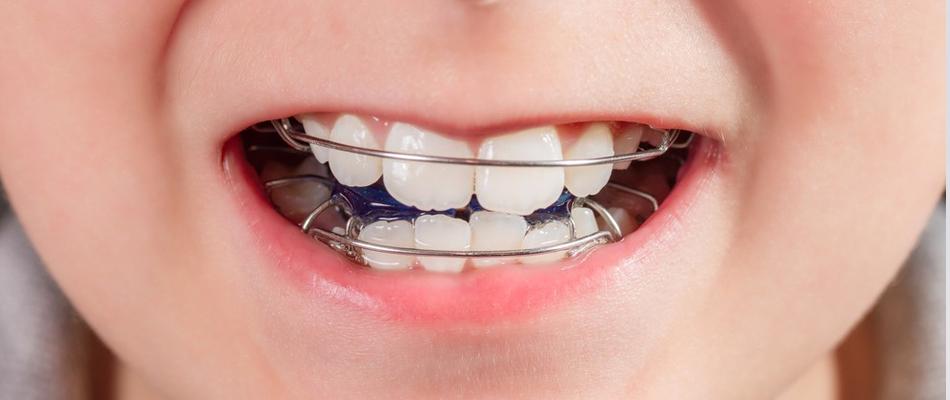 L'ortodonzia nei bambini   dentalbaby   Corso di igiene